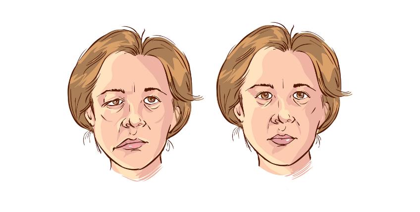 paralisi facciale